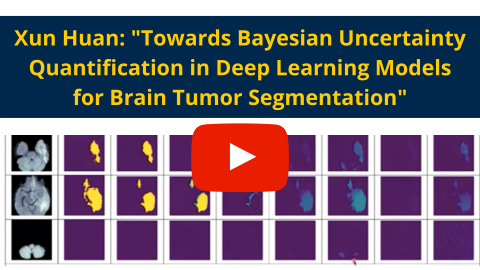 Towards Bayesian UQ in DL Models for Brain Tumor Segmentation